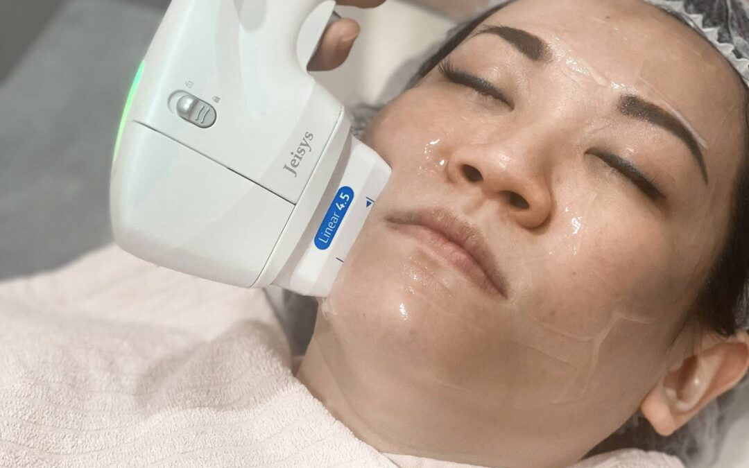 Ultracel Q+ HIFU's Painless Solution to Excellent Face Lift Results