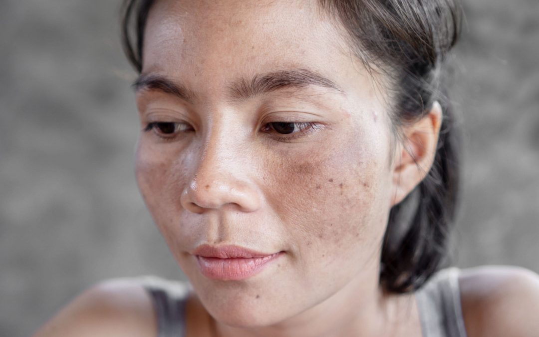 How to Remove Freckles in Singapore?