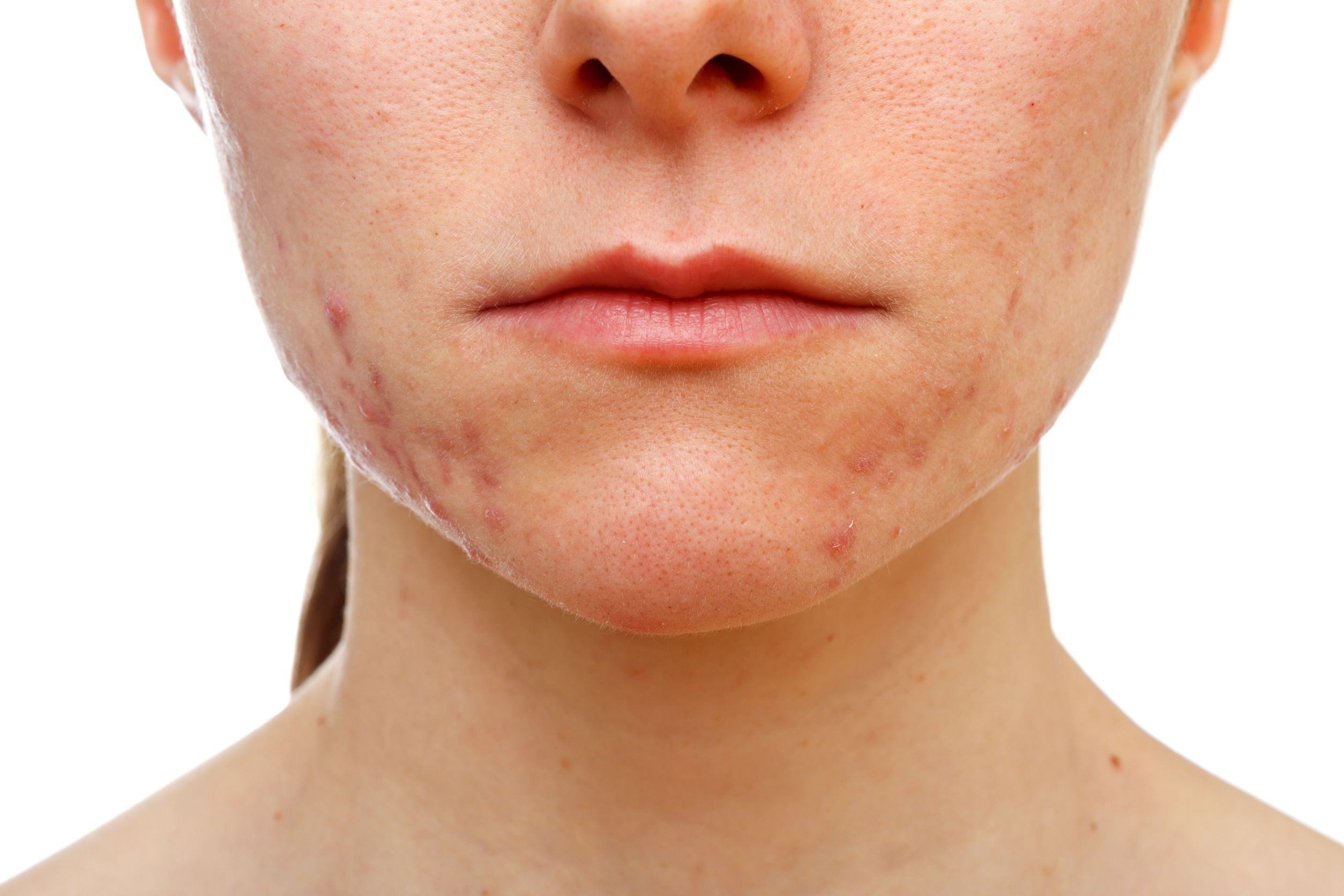 women with acne scars