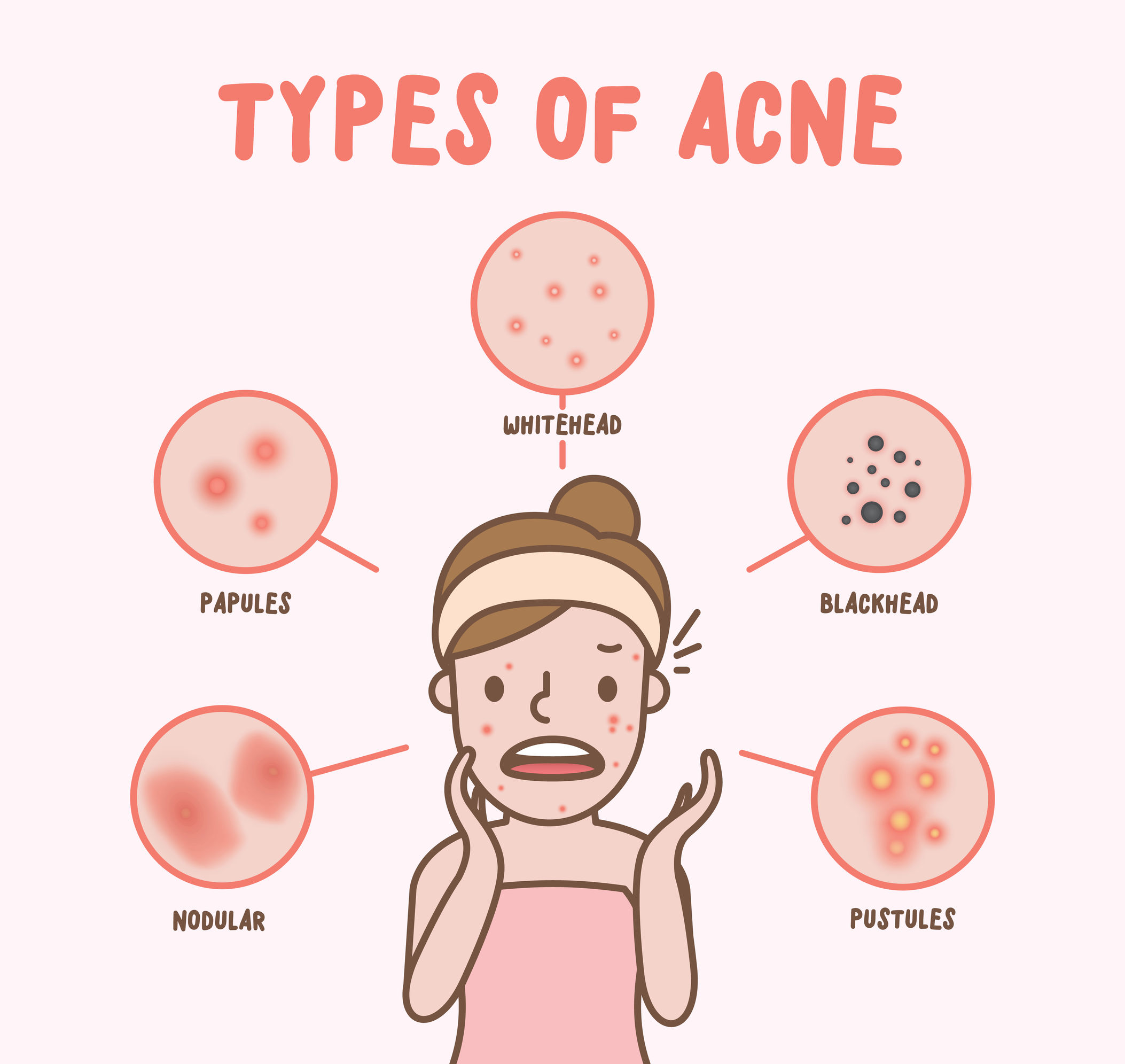illustration of women and types of acne