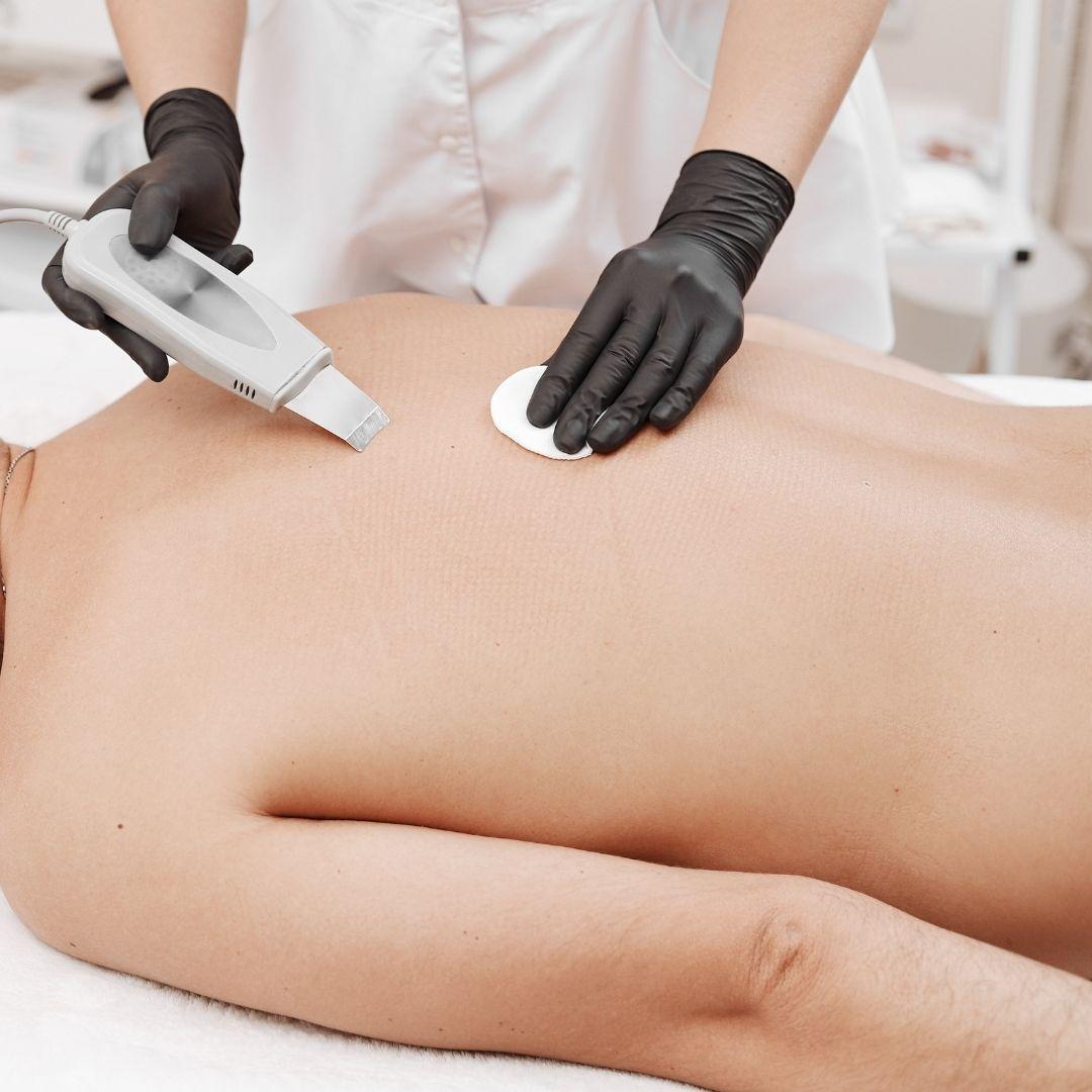 back acne facial treatment singapore