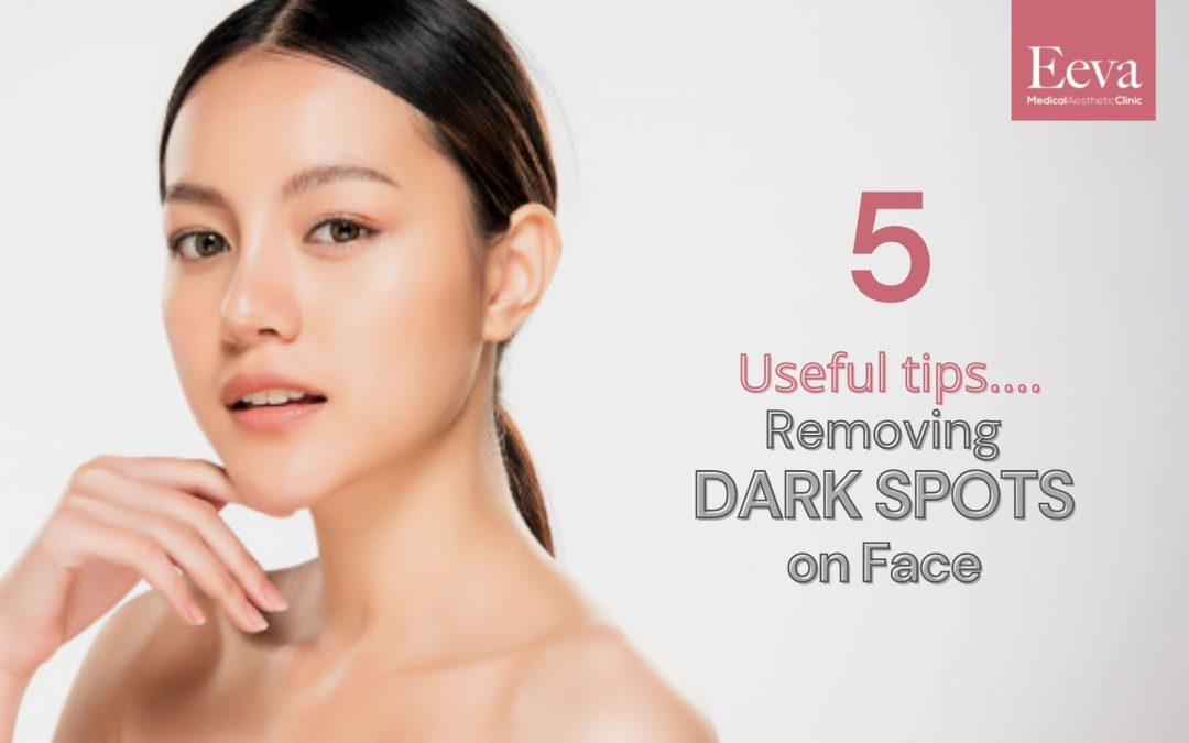 5 Useful Tips From a Doctor on How to Remove Dark Spots on Face