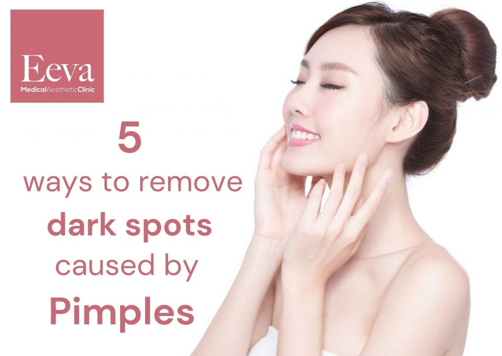 ways to remove dark spots caused by pimples