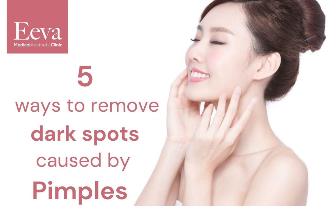 5 Practical Tips on How to Remove Dark Spots Caused by Pimples