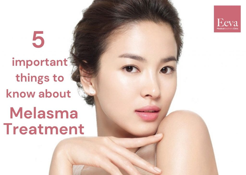 important things to know about melasma treatment
