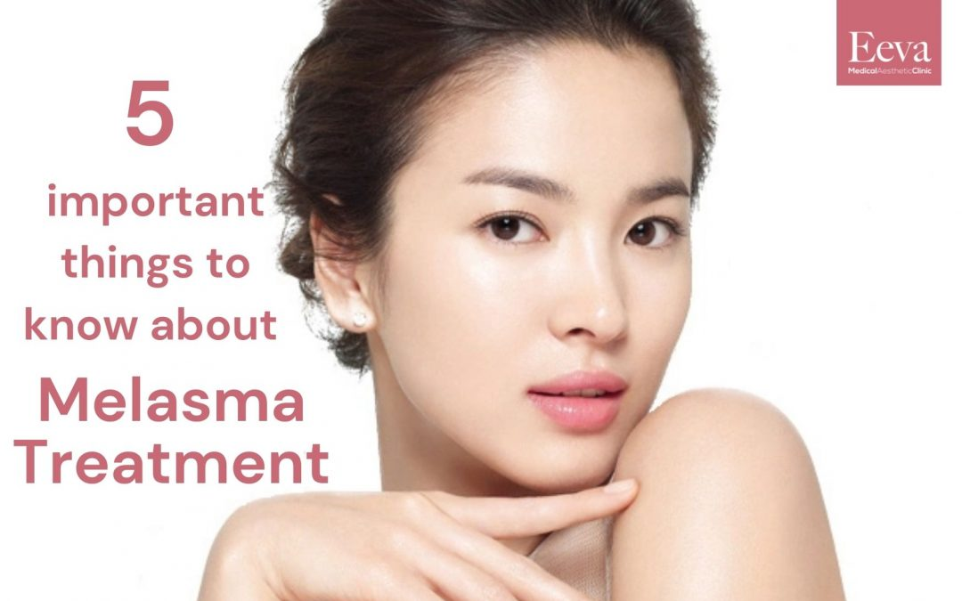 5 Important Things You Need To Know About Melasma Treatment