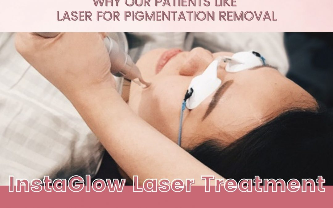Five Reasons Why Our Patients Like Laser for Pigmentation Removal