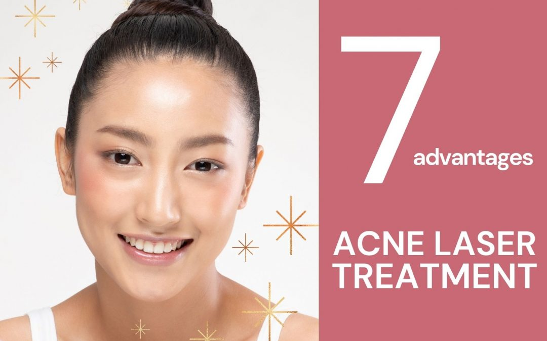 7 Advantages of Using Laser for Acne Treatment Singapore
