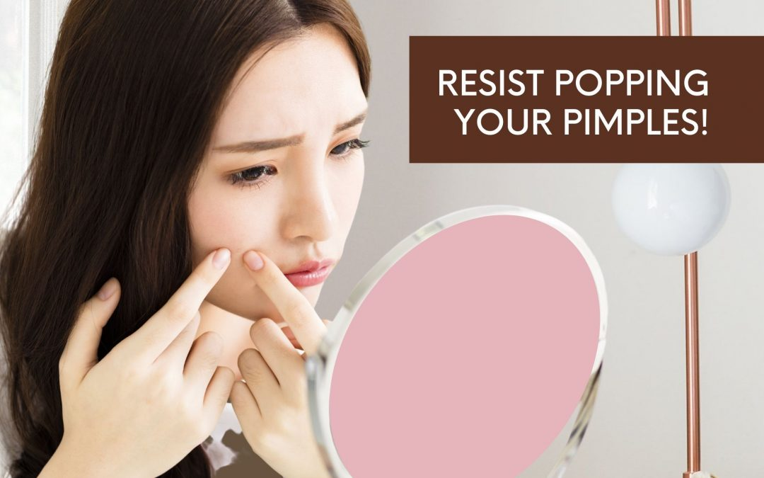 Why Popping Pimples is Bad for Your Skin