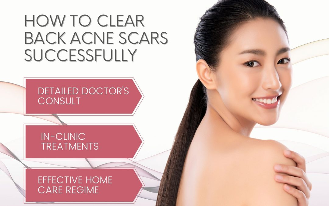 How To Remove Back Acne Scars Successfully