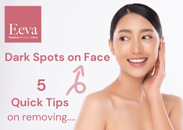 5 Quick Tips Regarding How To Remove Dark Spots On Face