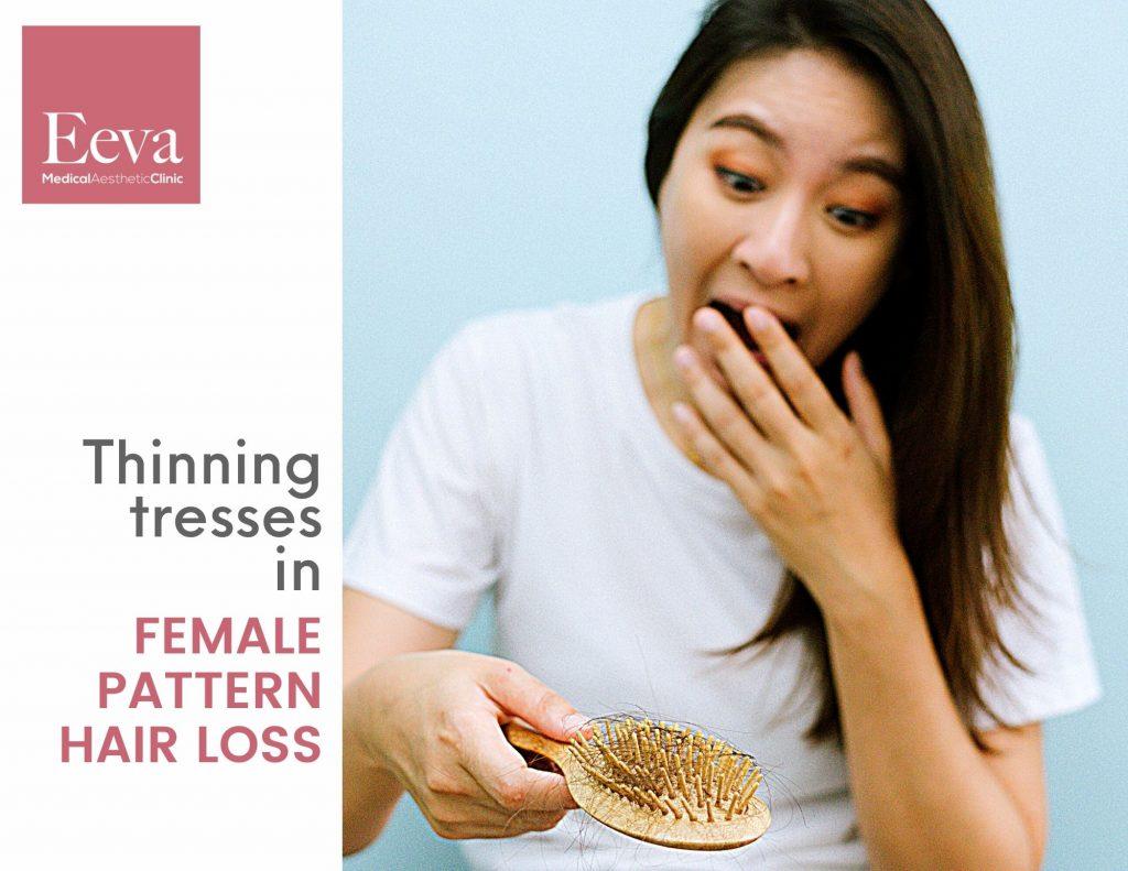 female pattern hair loss bald