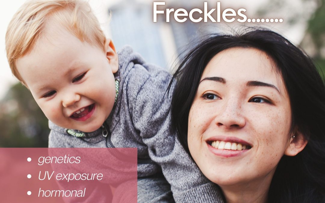 What is Freckles and What Causes Freckles?