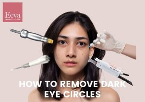 doctor guide to remove dark eye circle
