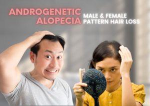 Androgenic Alopecia hair loss