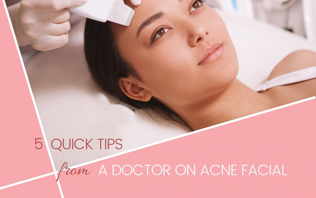 5 Quick Tips from A Doctor on Acne Facial in Singapore
