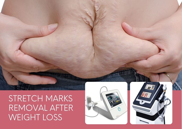 Getting Rid of Stretch Marks After Weight Loss