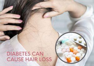 diabetes hair loss