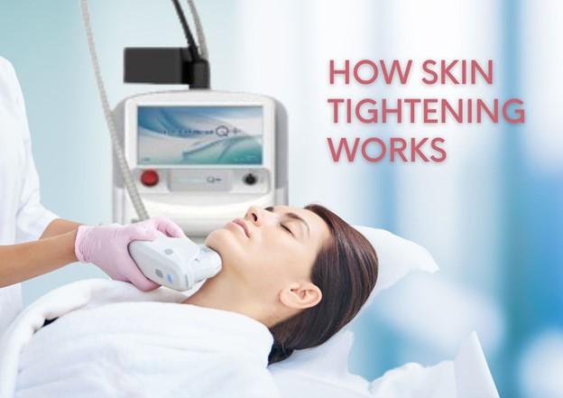 How Laser Skin Tightening Works