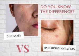 Hyperpigmentation vs. Melasma