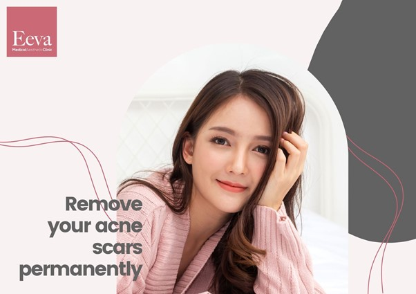 Acne Scar Removal in Singapore: A Doctor's Guide