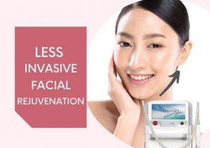 hifu facelift skin tightening rejuvenation