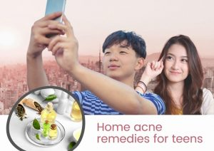 ● acne treatment in Singapore
