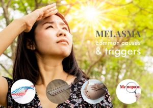 How to cure melasma pigmentation permanently