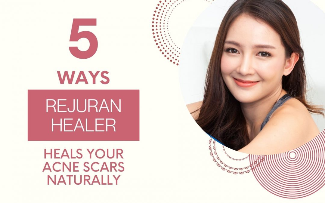 5 Ways that Rejuran Healer Can Heal Acne Scars Naturally