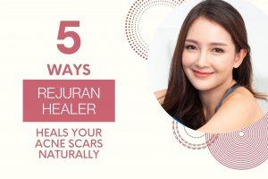 rejuran healer acne scar treatment