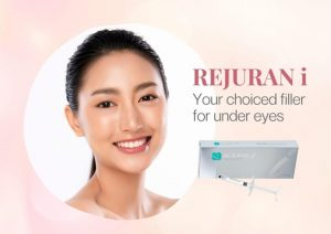 under eye tear trough fillers Singapore