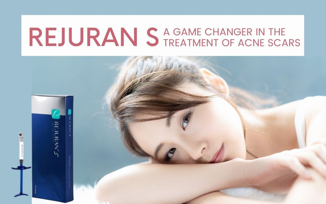 5 Reasons Why Rejuran S for Acne Scar Removal is a Game-changer